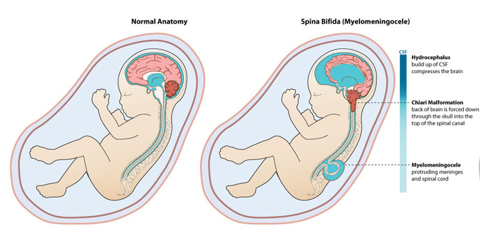 Bổ sung acid folic trước khi mang thai để dự phòng dị tật ống thần kinh 1