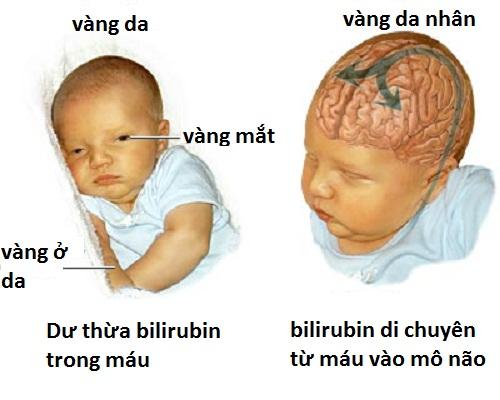 Cẩm nang chăm sóc trẻ sơ sinh – Phần 2: Vàng da sơ sinh 1