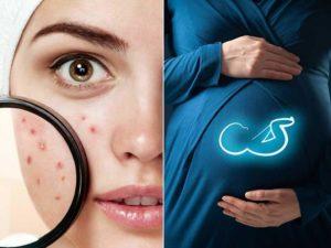 Mẹo trị nổi mụn khi mang thai cực hay 1