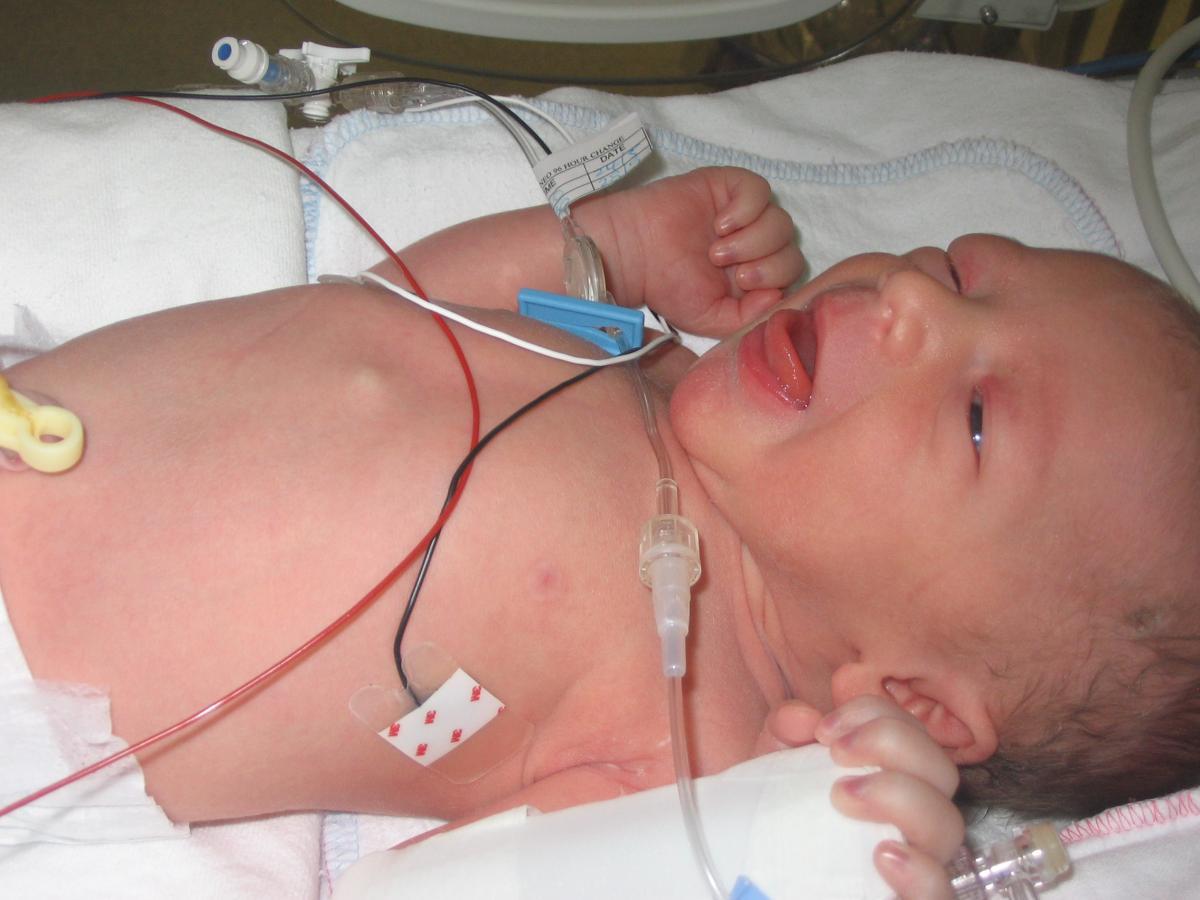 4.1 Hội chứng suy hô hấp ở trẻ sơ sinh 1