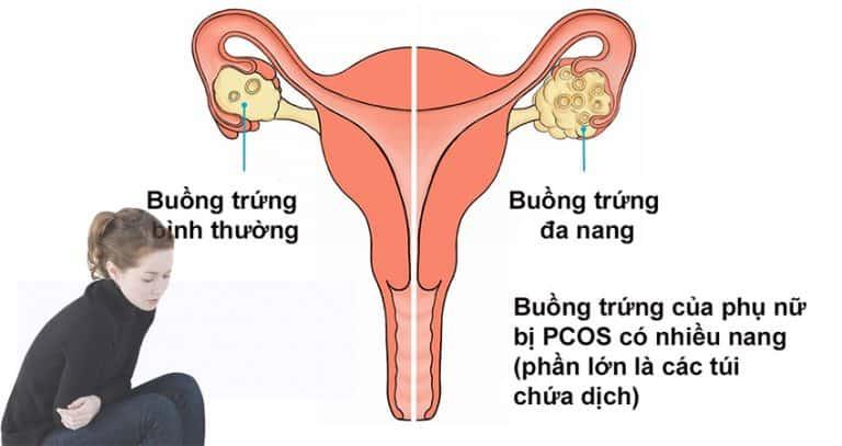 1. Hội chứng buồng trứng đa nang (PCOS) là gì? 1