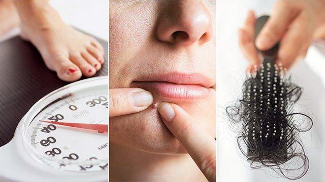 3. Các triệu chứng của PCOS là gì? 1