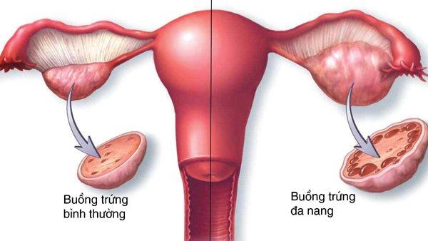 Cách để có con khi mắc buồng trứng đa nang (PCOS)? 1