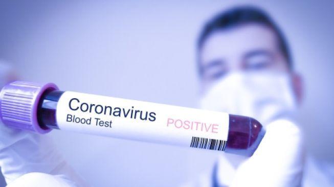 [TRỰC TIẾP] – Radio VOH – Virus Corona có lây từ mẹ sang con? 1