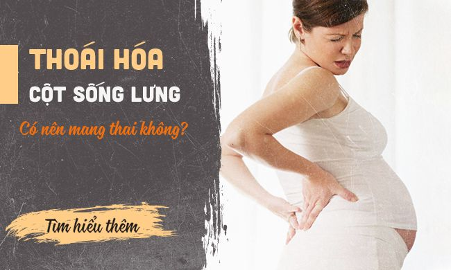 Phụ nữ bị thoái hoá cột sống lưng có mang thai được không? 1