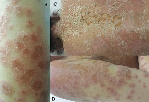 Chốc dạng herpes (Impetigo herpetiformis) 1
