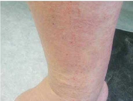 Sẩn ngứa nang lông (pruritic folliculitis) 1